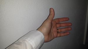 Smaller cuff